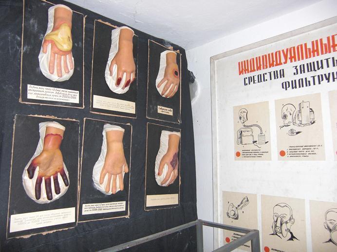 Gummihänder som illustrerar symtom på radioaktiva skador
